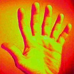 med_six_fingers.jpg